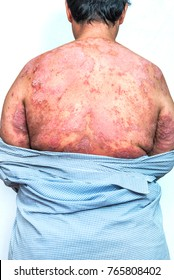 Skin of Psoriasis patient.Psoriasis is an autoimmune disease that affects the skin cause skin inflammation red and scaly.