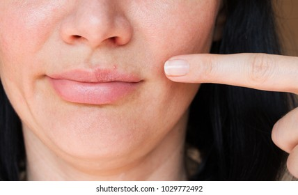 skin rashes. pimples on the lips