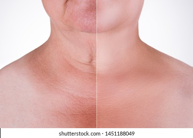 Skin rejuvenation on the neck, before after anti aging concept, wrinkle treatment, facelift and plastic surgery, half of body isolated on white background