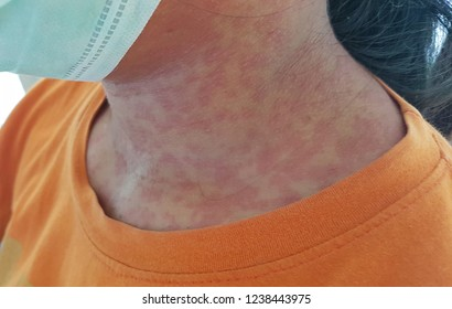skin of rubella patient, rubella infection people, skin clinical sign, rash with fever patient