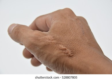 skin scars human with soft focus on white background,