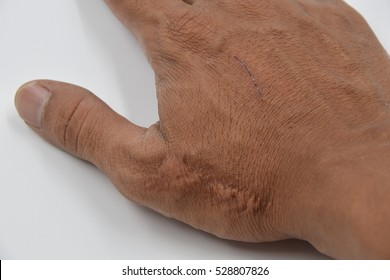 skin scars human with soft focus  on white background