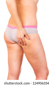 Skin staggered a cellulite