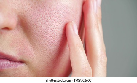 Skin texture with enlarged pores. Part of a woman's face