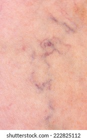 Skin with varicose veins