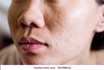 Skin young woman with skin disease and acne.