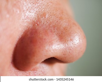 Skincare and health concept. Closeup small pimple acne blackheads on skin of nose  Asian woman.