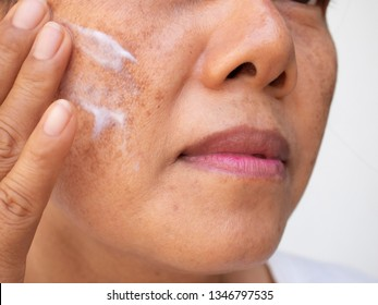 Skincare and health concept. The problem of dark spots on the face of woman that makes them lack confidence.Image of female is applying cream treatment  melasma.