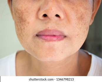 Skincare and health concept. The problem of dark spots on the face of woman that makes them lack confidence.