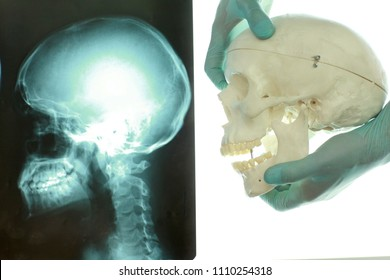 skull and neck  at x-ray film viewer on the left , hands in gloves holding model of skull bones on the right.