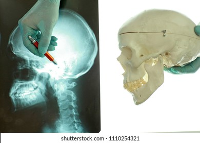 skull and neck  at x-ray film viewer on the left , model of skull bones on the right. hand in glove pointing on image