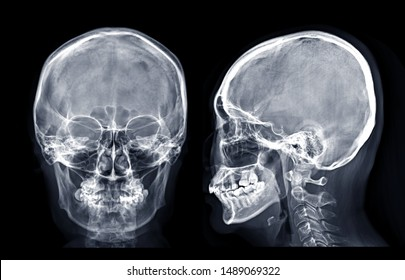 Skull x-ray image of Human skull  AP and Lateral  isolated on Black Background.
