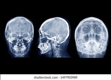 Skull x-ray image of Human skull  AP, Lateral and water view for demonstrate facial bone isolated on Black Background.