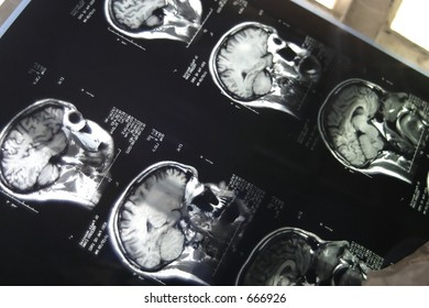 Skull X-rays