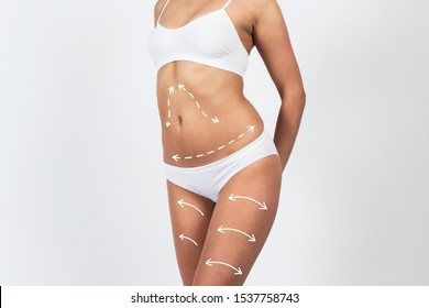Slim figure of a young beautiful girl in underwear on white background. Plastic surgery cellulite removal.