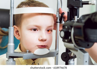 Slit lamp examination. Biomicroscopy of the anterior eye segment. Basic eye examination.
