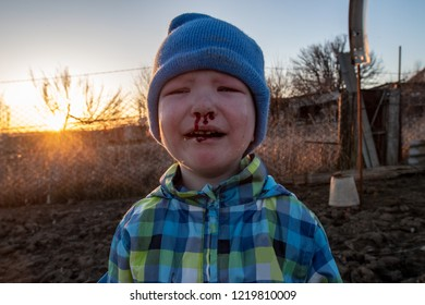 Small caucasian blond boy in blue hat and plaid jacket fell and smashed his nose, cleaning the infield. Child fell and broke his nose, cries and his blood runs down his face. Spring evening, sunset.