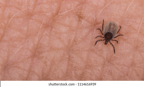 Small deer tick on human skin close-up. Ixodes ricinus. Dangerous biting parasite on detail of the epidermis with light hairs. It carries encephalitis, Lyme borreliosis, babesiosis and ehrlichiosis.