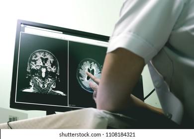 small vessel disease and dementia on film MRI