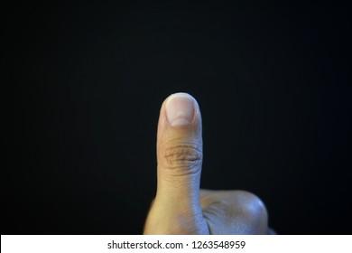White Spots On Finger Nails Images, Stock Photos & Vectors
