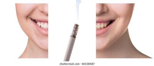 smokers teeth images stock photos amp vectors shutterstock