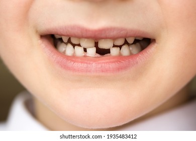 The smile of a five and a half year old boy whose first milk tooth and lower incisor fell out