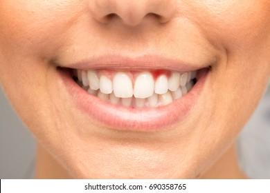 Smile of girl with bleeding gums