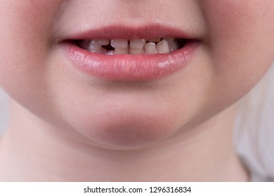 Smile of little cute girl without lost baby tooth