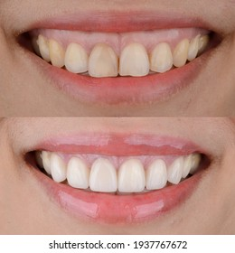 Smile makeover before and after, gummy smile correction and ceramic veneers treatment.