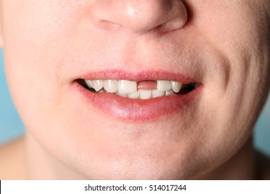 Smile of man without one front tooth