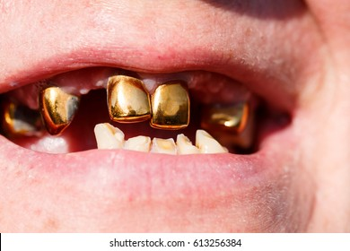 Smile with missing teeth and gold teeth