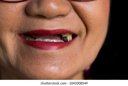 smile of toothless old woman