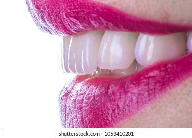 Dental Veneers Images, Stock Photos & Vectors | Shutterstock