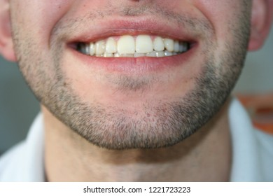 A smile of a young man with a slight beard. The guy smiles and shows his teeth.