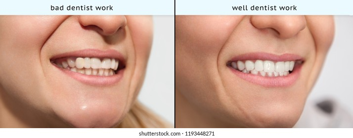 Smiled young woman with bad dentist work and well dentist work