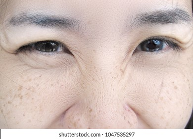 Smiling Face of Young Asian Woman with Skin Problem Wrinkle Eye