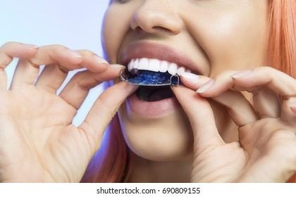 Smiling Girl Holding blue Retainer, Braces for Teeth. Orthodontics Dental Theme, Methods of Teeth (Bite) Correction, Close-up