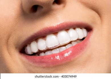 Smiling girl wearing invisible teeth braces close up