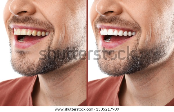 Smiling Man Before After Teeth Whitening People Stock Image