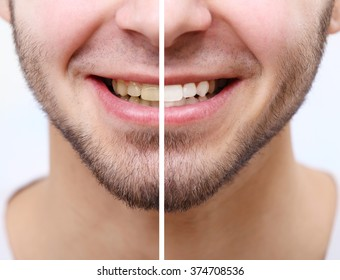 Smiling man isolated on white: before and after concept