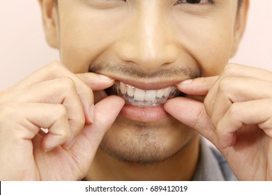 Smiling man with silicone trainer close up for more whitening teeth, Holding Invisible braces. home whitening or bleaching gel tray opalescence.