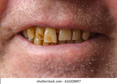 Smiling mouth of a man with crooked yellow teeth close-up