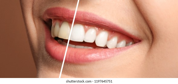 Smiling woman before and after teeth whitening procedure, closeup