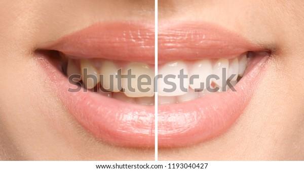 Lächelnde Frau vor und nach dem Verfahren des Zähnenweißens, Nahaufnahme