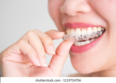 A smiling woman holding invisalign or invisible braces, orthodontic equipment