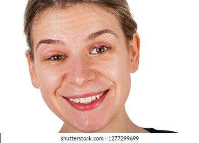 Smiling woman on isolated background with stye - staphylococcus viral infection - on upper eyelid. Both eyelids swollen