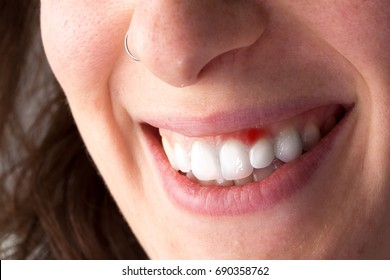 Smiling woman with red gingiva