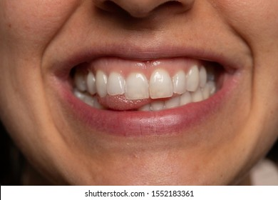 Smiling woman showing white teeth close up view