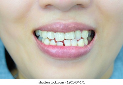 Smiling woman.Open mouth. See teeth.See teeth that are not aligned.Unattractive smile.concept:Orthodontics