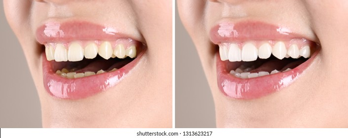 Smiling young woman before and after teeth whitening procedure, closeup
